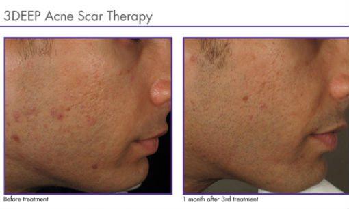 endymed-acne-3