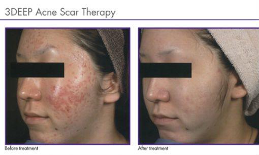endymed-acne-2