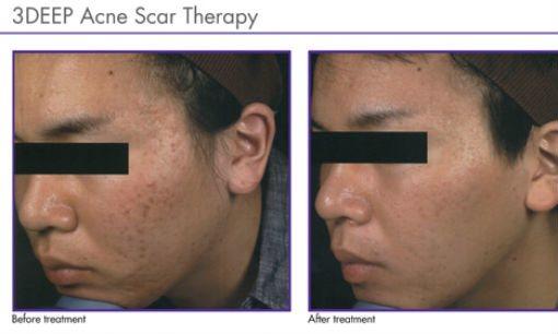 endymed-acne