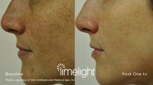 IPL LimeLight Photofacial Rejuvenation