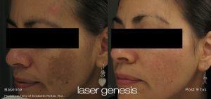 Laser Genesis™ non-ablative skin resurfacing, Laser Genesis Non-Ablative Skin Resurfacing